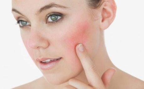 Preosjetljiva koža lica: crvenilo i kuperoza