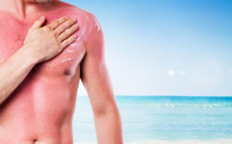 Opekline od sunca: najbolja  rješenja za brzi oporavak