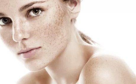 Hiperpigmentacije: Rješite se tamnih mrlja