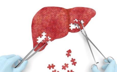 Jetra: Kako očuvati zdravlje jetre?