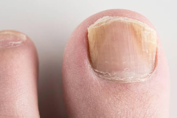 Rezultat slika za gljivice na noktima