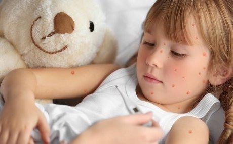 Djeca i vodene kozice: kako ih pravilno liječiti?